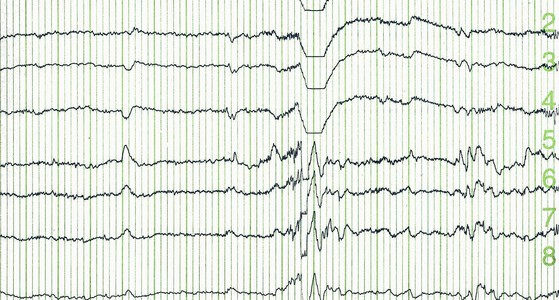 EEG epilepsi